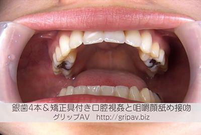 [無量] 銀歯4本&矯正具付き口腔視姦と咀嚼顔舐め接吻 / 亜希奈ちゃん