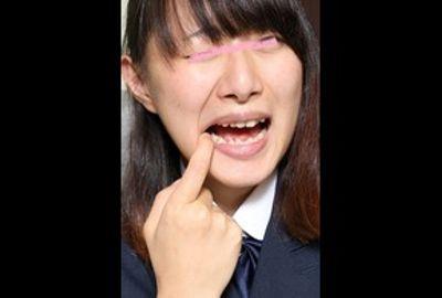 里穂ちゃん再び 虫歯発見しました・・・